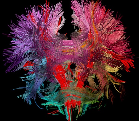 Neural Connections In the Human Brain Photo by Image Editor