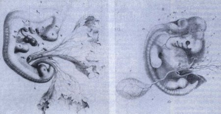 The original drawings of a dog embryo (4th week) and a human embryo (4th week) by Ecker. The extent to which Haeckel fraudulently altered these is apparent by comparison with the picture above.  Photo from Creation.com
